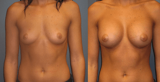 Beast Augmentation Before and After Photos