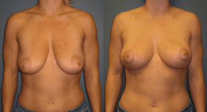 Conrad Breast Lift Patient Before and After